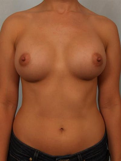 Breast Augmentation Gallery - Patient 1310752 - Image 2