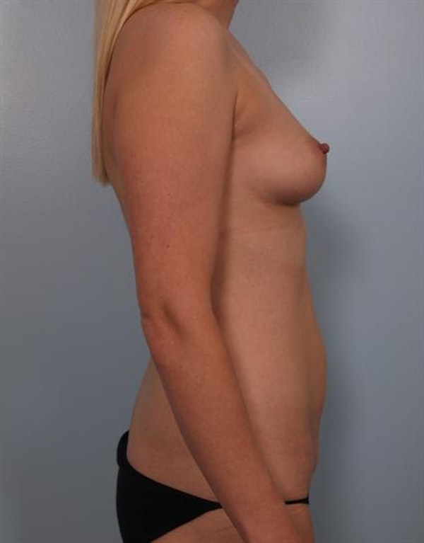 Mommy Makeover Gallery - Patient 1310750 - Image 3