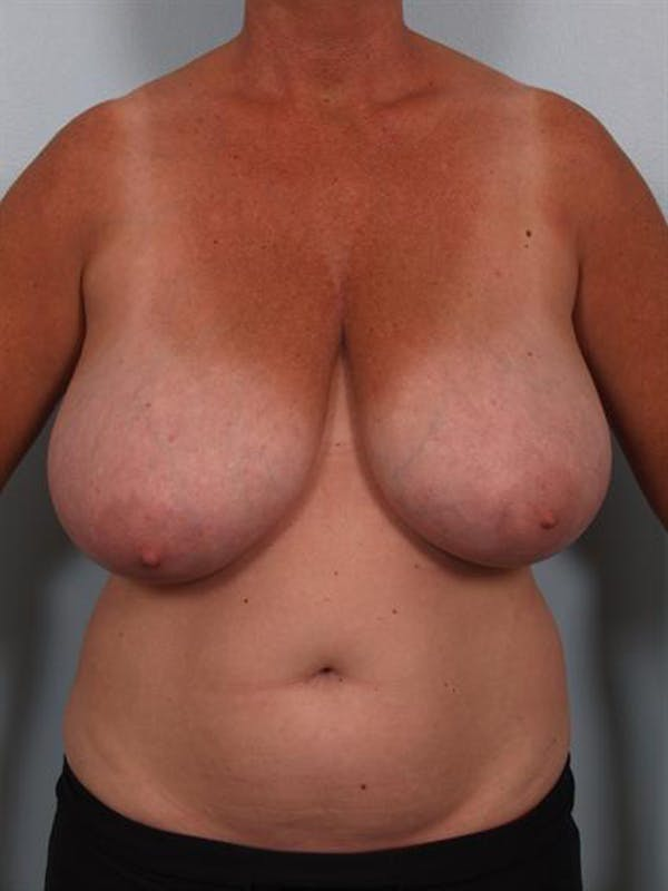 Breast Reduction Gallery - Patient 1310753 - Image 1