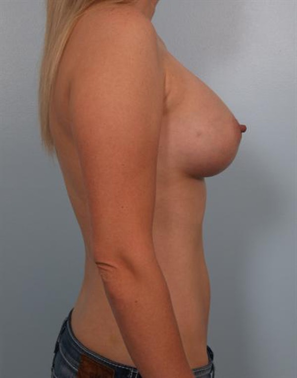 Mommy Makeover Gallery - Patient 1310750 - Image 4