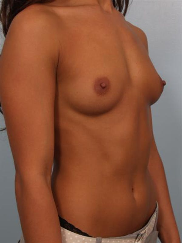 Breast Augmentation Gallery - Patient 1310752 - Image 3