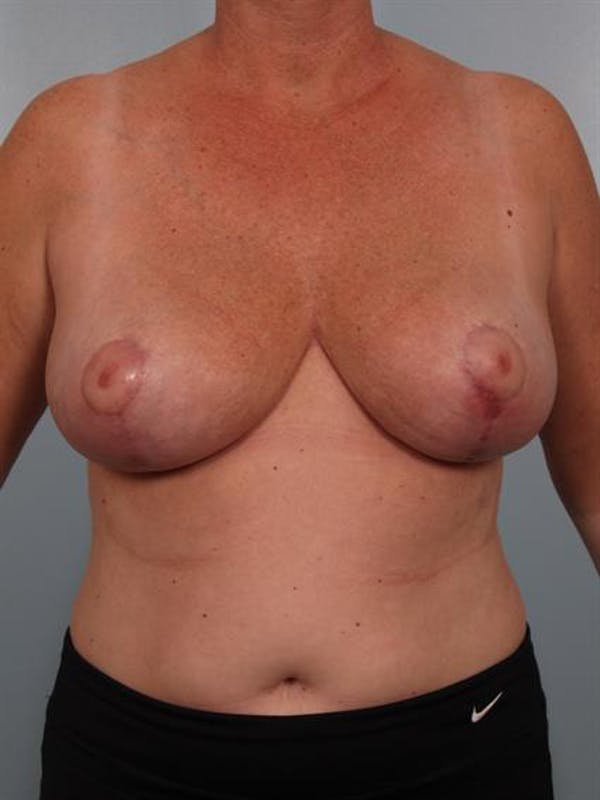 Breast Reduction Gallery - Patient 1310753 - Image 2