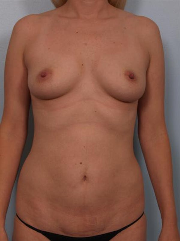 Mommy Makeover Gallery - Patient 1310750 - Image 1