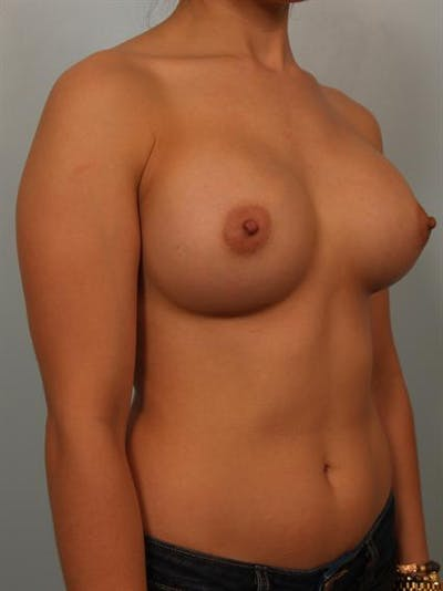 Breast Augmentation Gallery - Patient 1310752 - Image 4