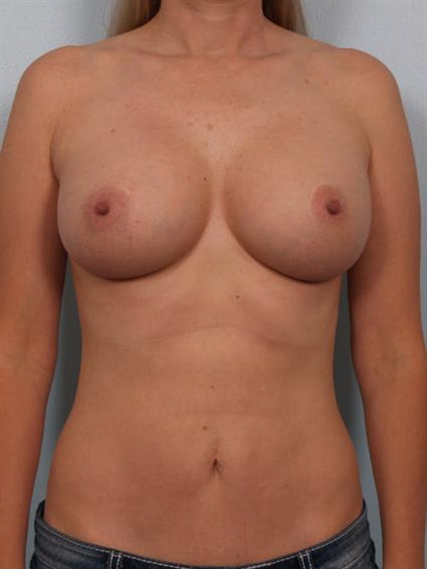 Mommy Makeover Gallery - Patient 1310750 - Image 2