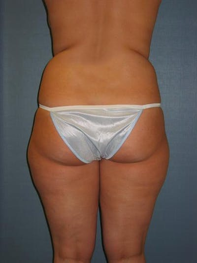 Power Assisted Liposuction Gallery - Patient 1310756 - Image 1