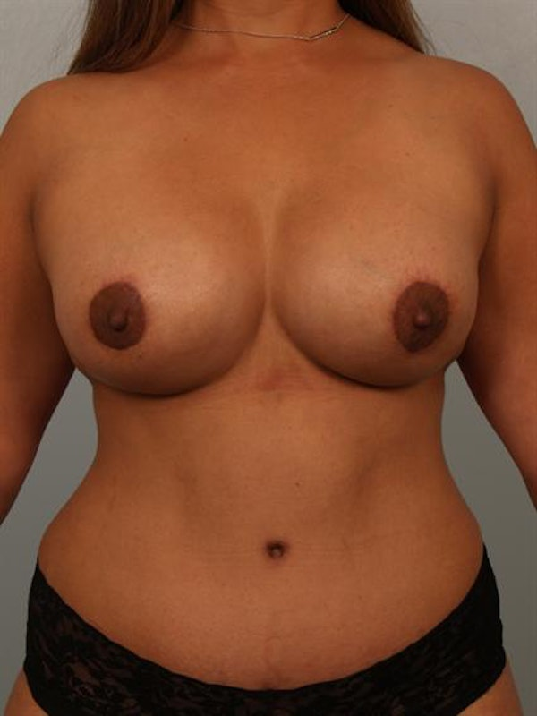 Complex Breast Revision Gallery - Patient 1310754 - Image 2