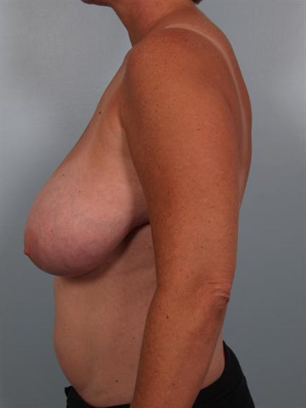 Breast Reduction Gallery - Patient 1310753 - Image 3