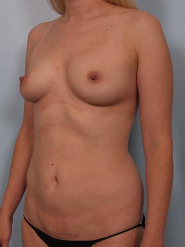 Mommy Makeover Gallery - Patient 1310750 - Image 5