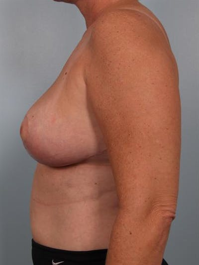Breast Reduction Gallery - Patient 1310753 - Image 4