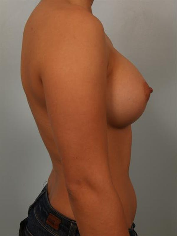 Breast Augmentation Gallery - Patient 1310752 - Image 6