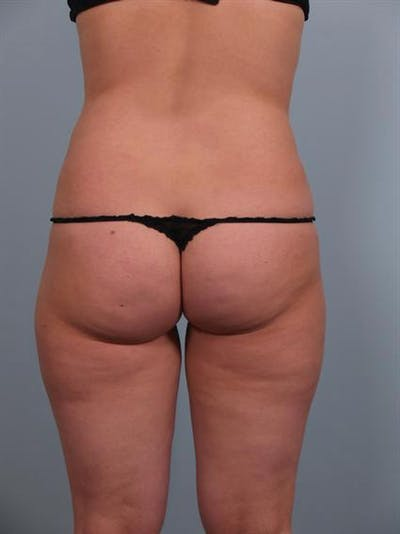 Power Assisted Liposuction Gallery - Patient 1310756 - Image 2
