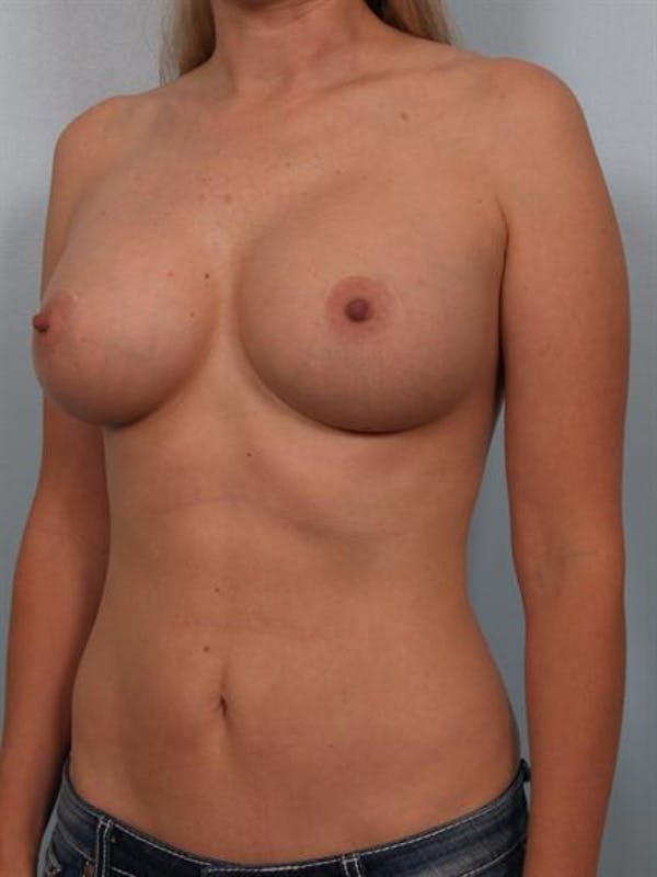 Mommy Makeover Gallery - Patient 1310750 - Image 6