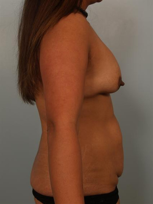 Complex Breast Revision Gallery - Patient 1310754 - Image 3