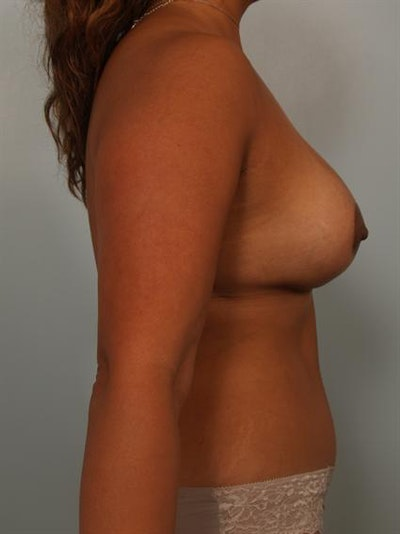 Complex Breast Revision Gallery - Patient 1310754 - Image 4