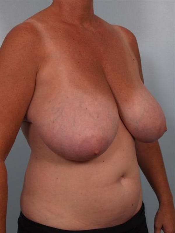 Breast Reduction Gallery - Patient 1310753 - Image 5