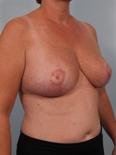 Breast Reduction Gallery - Patient 1310753 - Image 6
