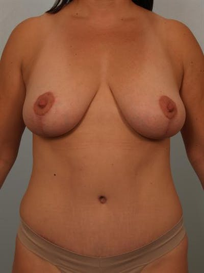 Mommy Makeover Gallery - Patient 1310757 - Image 2