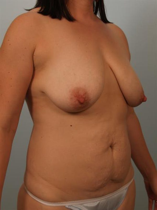 Mommy Makeover Gallery - Patient 1310757 - Image 3