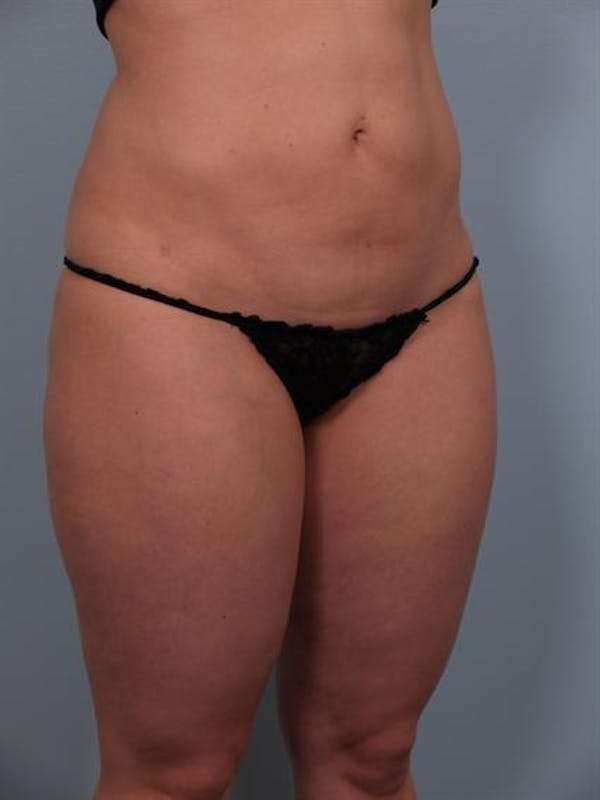 Power Assisted Liposuction Gallery - Patient 1310756 - Image 6