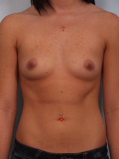 Breast Augmentation Gallery - Patient 1310762 - Image 1