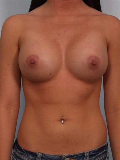 Breast Augmentation Gallery - Patient 1310762 - Image 2