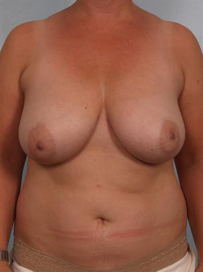 Breast Reduction Gallery - Patient 1310761 - Image 1