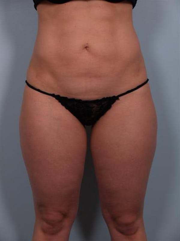 Power Assisted Liposuction Gallery - Patient 1310756 - Image 8