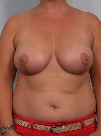 Breast Reduction Gallery - Patient 1310761 - Image 2