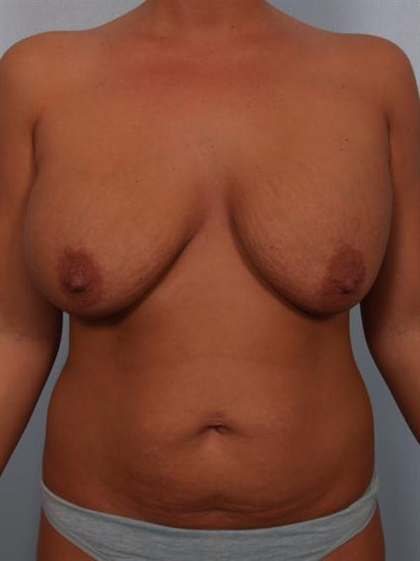 Complex Breast Revision Gallery - Patient 1310764 - Image 1