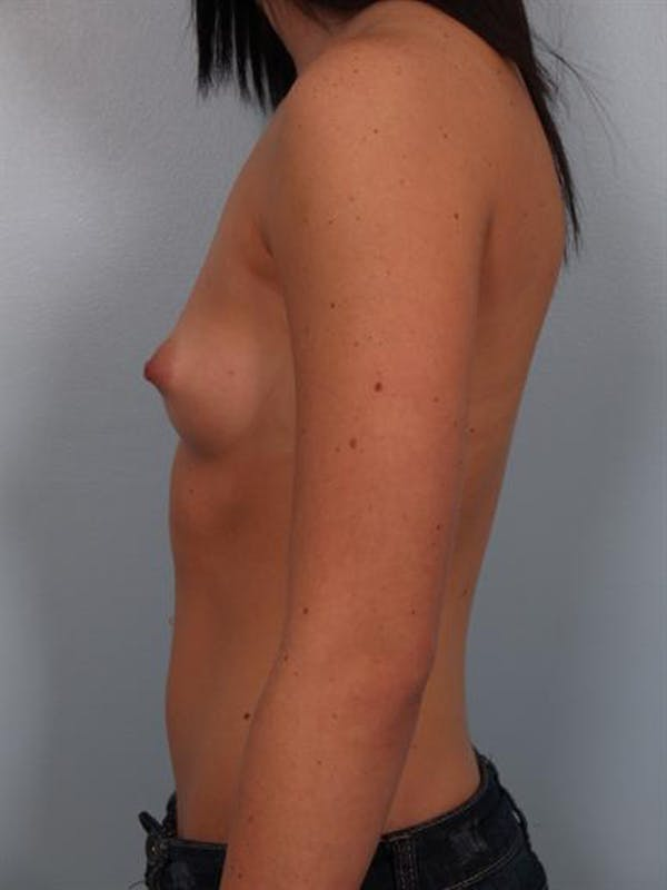 Breast Augmentation Gallery - Patient 1310762 - Image 3