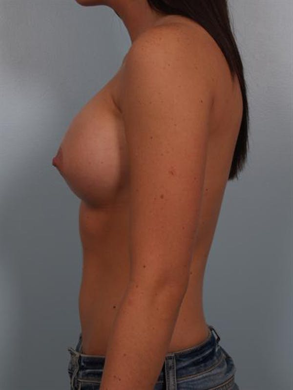 Breast Augmentation Gallery - Patient 1310762 - Image 4