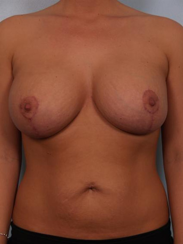 Complex Breast Revision Gallery - Patient 1310764 - Image 2