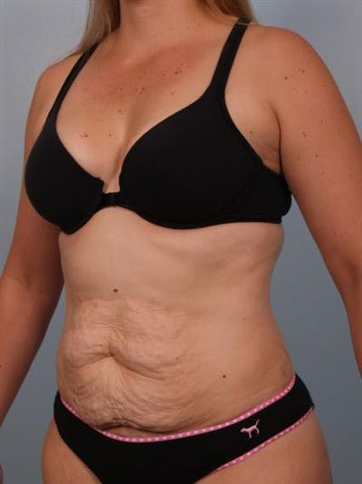 Tummy Tuck Gallery - Patient 1310767 - Image 1