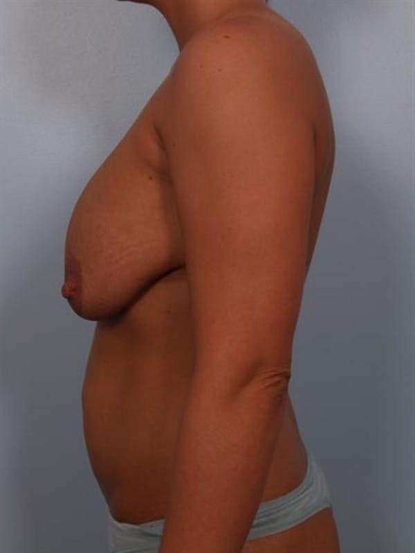 Complex Breast Revision Gallery - Patient 1310764 - Image 3