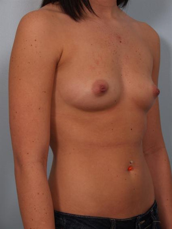 Breast Augmentation Gallery - Patient 1310762 - Image 5