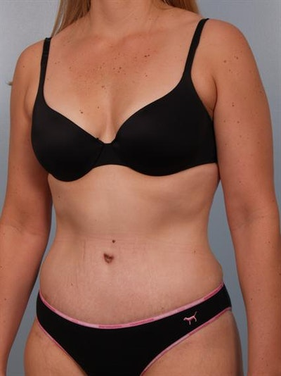 Tummy Tuck Gallery - Patient 1310767 - Image 2