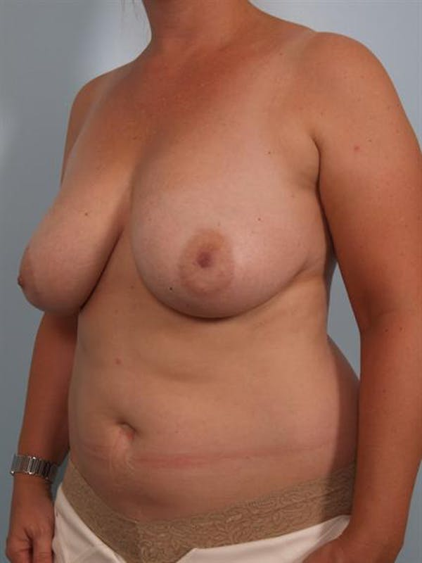 Breast Reduction Gallery - Patient 1310761 - Image 5