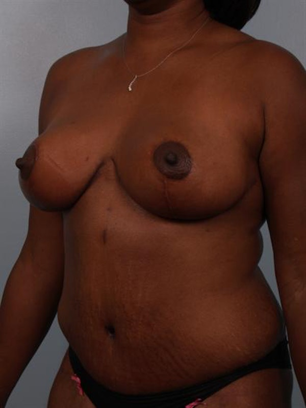 Mommy Makeover Gallery - Patient 1310765 - Image 4