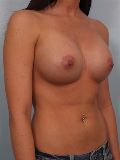 Breast Augmentation Gallery - Patient 1310762 - Image 6