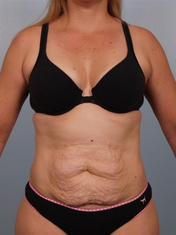 Tummy Tuck Gallery - Patient 1310767 - Image 3