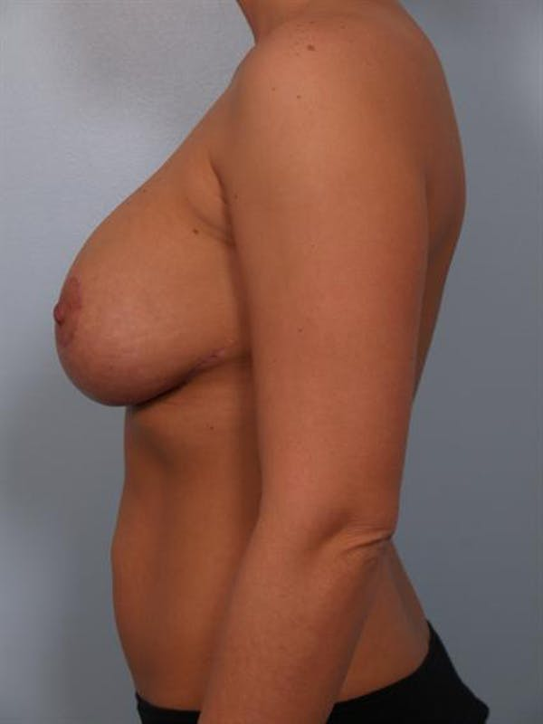 Complex Breast Revision Gallery - Patient 1310764 - Image 4