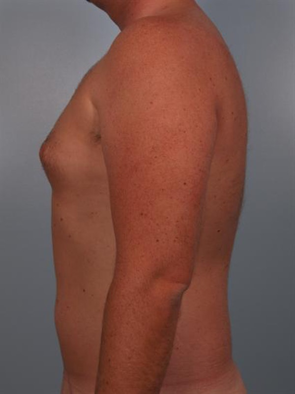 Power Assisted Liposuction Gallery - Patient 1310769 - Image 3