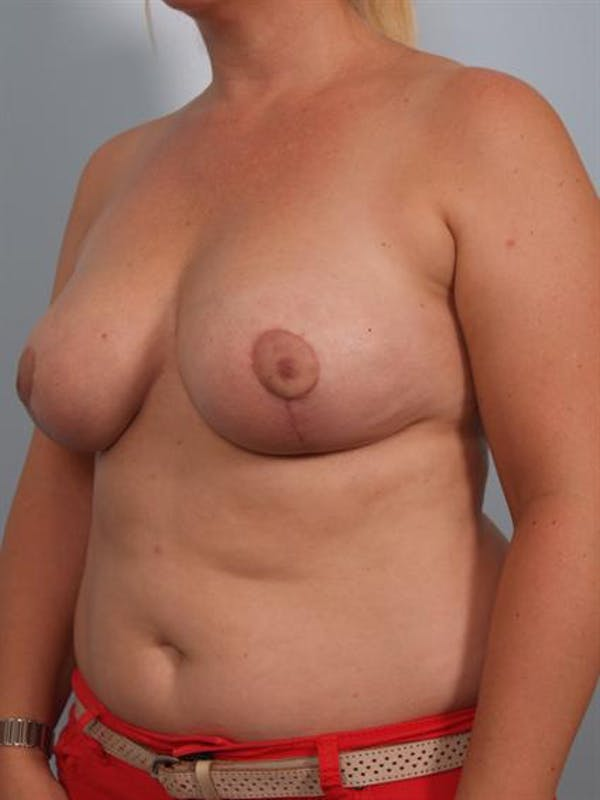 Breast Reduction Gallery - Patient 1310761 - Image 6
