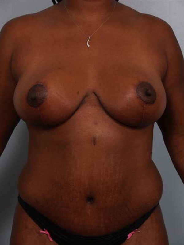 Mommy Makeover Gallery - Patient 1310765 - Image 2