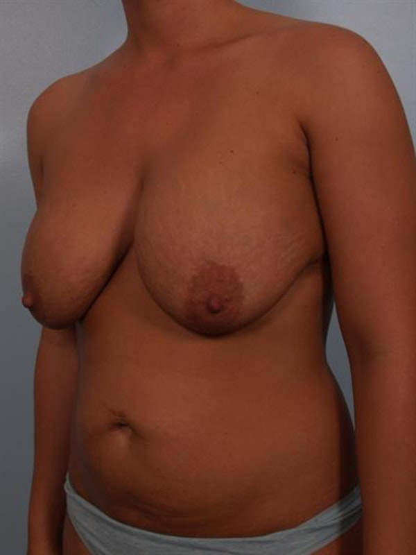 Complex Breast Revision Gallery - Patient 1310764 - Image 5