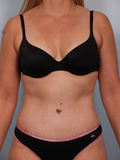 Tummy Tuck Gallery - Patient 1310767 - Image 4