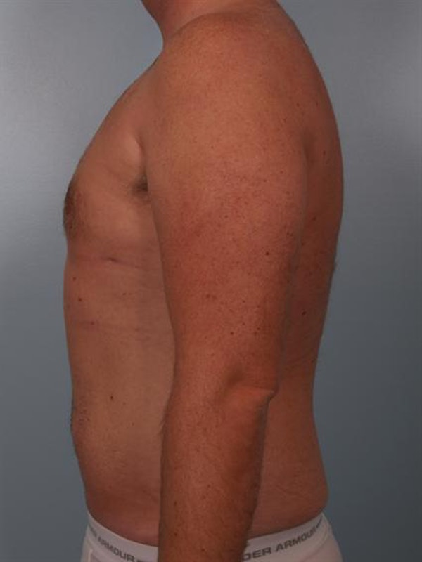 Power Assisted Liposuction Gallery - Patient 1310769 - Image 4