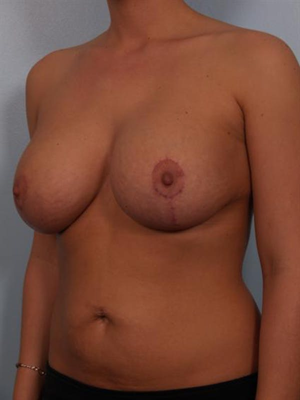 Complex Breast Revision Gallery - Patient 1310764 - Image 6