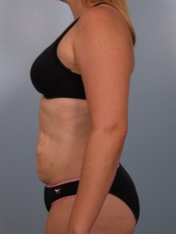 Tummy Tuck Gallery - Patient 1310767 - Image 5
